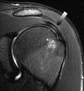 Durere la nivelul spatelui inferior care se extinde pana la cauza feselor ?i piciorului